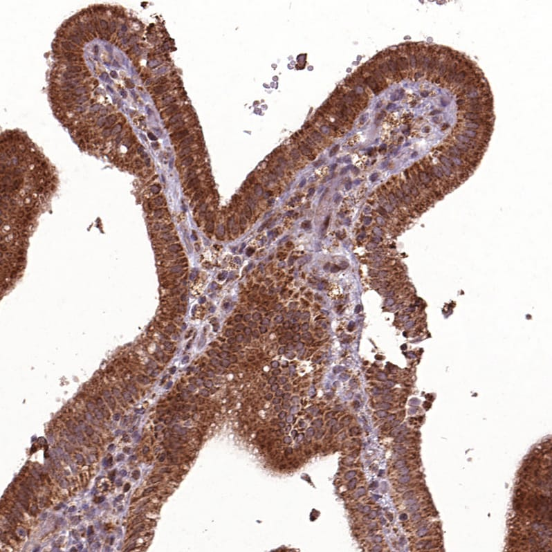 Immunohistochemistry (Formalin/PFA-fixed paraffin-embedded sections) - Anti-HYAL1 antibody (ab272545)
