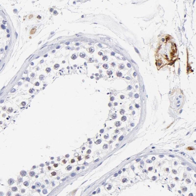 Immunohistochemistry (Formalin/PFA-fixed paraffin-embedded sections) - Anti-HORMAD2 antibody (ab272546)