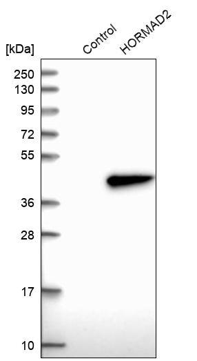 Western blot - Anti-HORMAD2 antibody (ab272546)