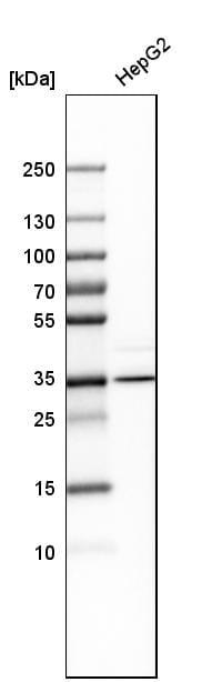 Western blot - Anti-AMT antibody (ab272551)
