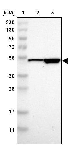 Western blot - Anti-SOX30 antibody (ab272553)
