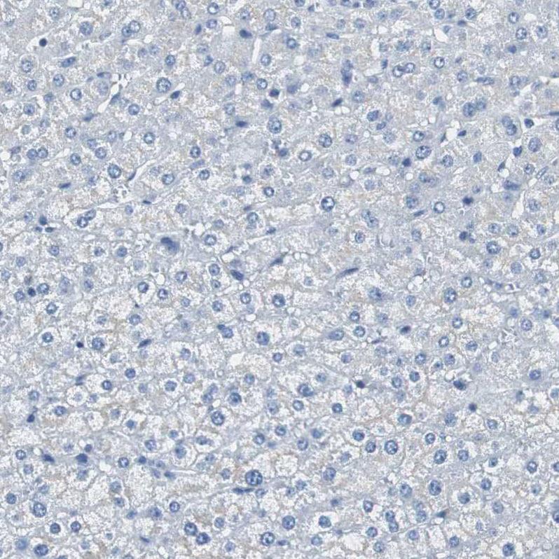 Immunohistochemistry (Formalin/PFA-fixed paraffin-embedded sections) - Anti-SOX30 antibody (ab272553)