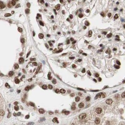 Immunohistochemistry (Formalin/PFA-fixed paraffin-embedded sections) - Anti-CHAMP antibody (ab272554)