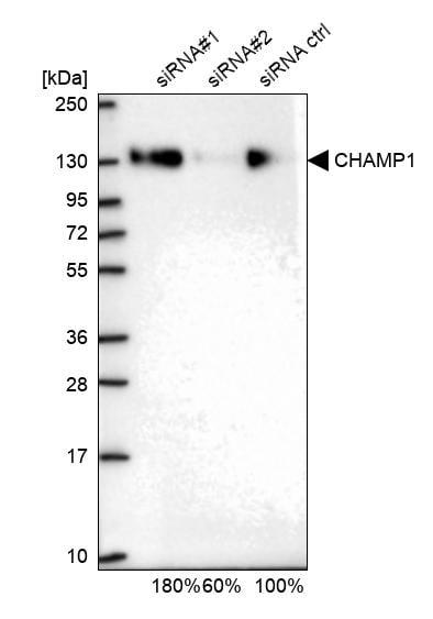Western blot - Anti-CHAMP antibody (ab272554)