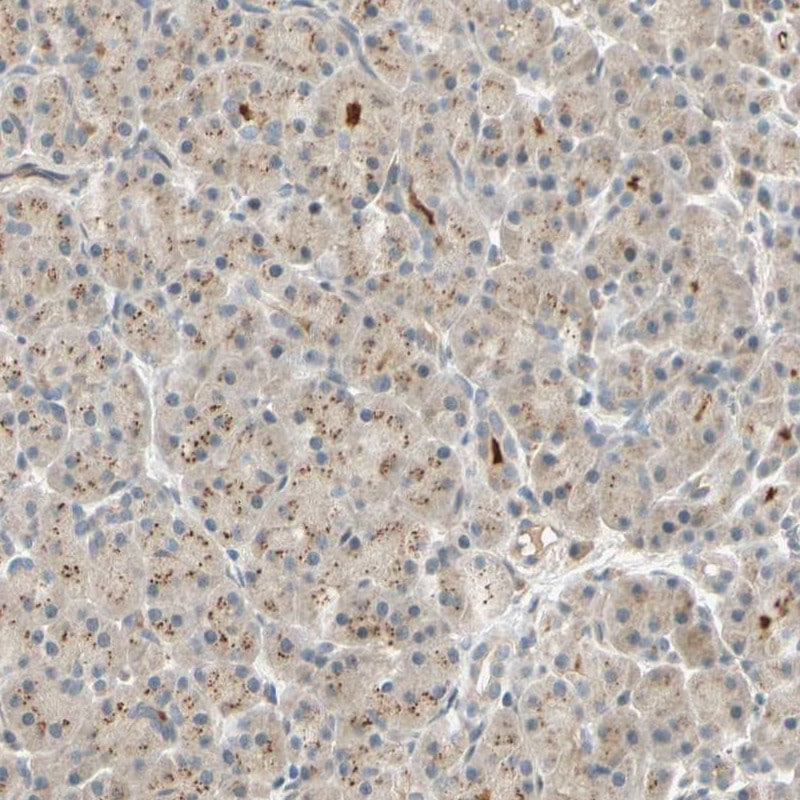 Immunohistochemistry (Formalin/PFA-fixed paraffin-embedded sections) - Anti-ACSL5 antibody (ab272556)