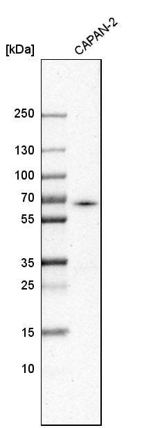 Western blot - Anti-ACSL5 antibody (ab272556)