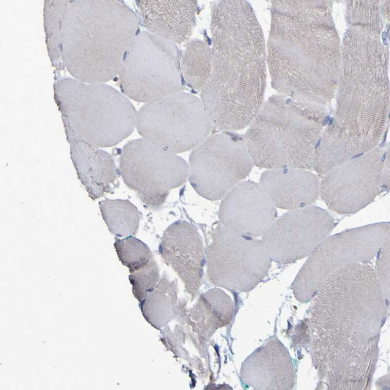 Immunohistochemistry (Formalin/PFA-fixed paraffin-embedded sections) - Anti-Synaptojanin antibody (ab272560)