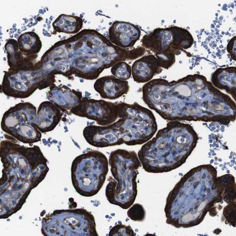Immunohistochemistry (Formalin/PFA-fixed paraffin-embedded sections) - Anti-APMAP antibody (ab272561)
