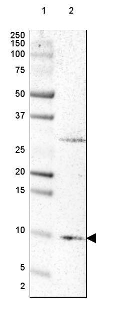 Western blot - Anti-NMES1 antibody (ab272562)