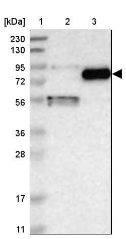Western blot - Anti-GGT7 antibody (ab272563)