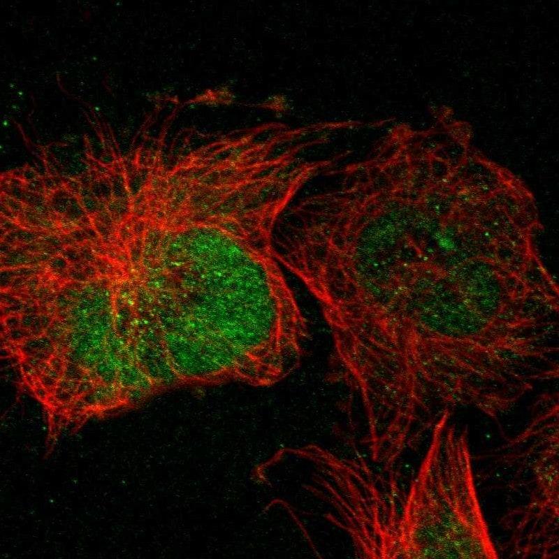 Immunocytochemistry/ Immunofluorescence - Anti-POMK antibody (ab272564)