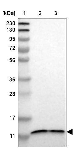 Western blot - Anti-TMEM141 antibody (ab272567)