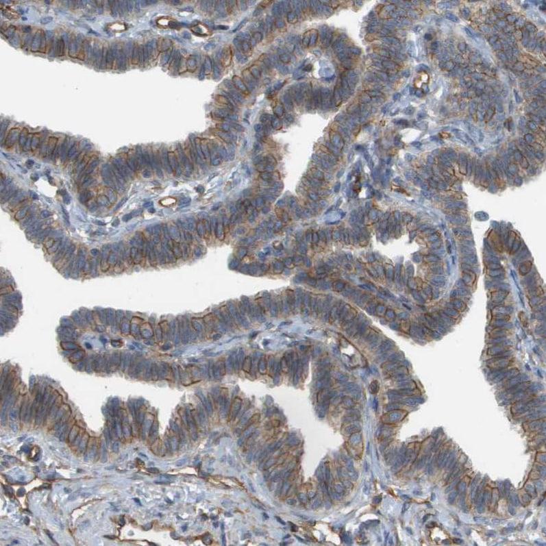 Immunohistochemistry (Formalin/PFA-fixed paraffin-embedded sections) - Anti-Sphingomyelin Synthase 2 antibody (ab272570)
