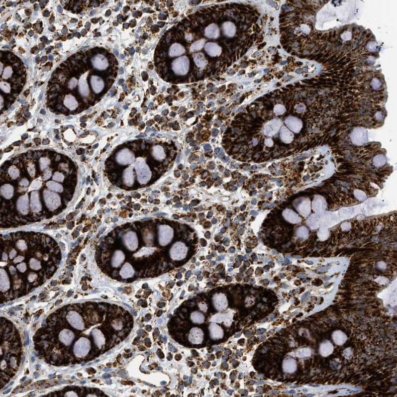 Immunohistochemistry (Formalin/PFA-fixed paraffin-embedded sections) - Anti-SQRDL antibody (ab272574)