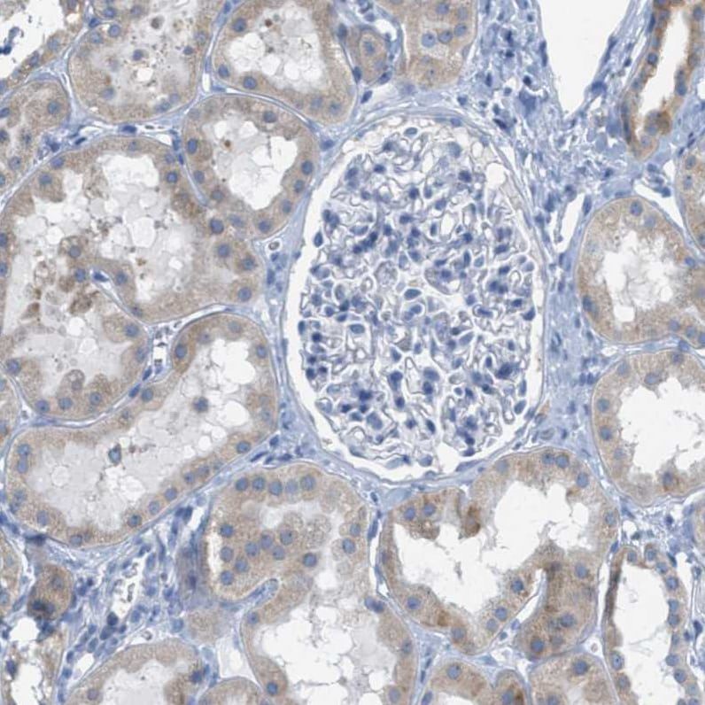 Immunohistochemistry (Formalin/PFA-fixed paraffin-embedded sections) - Anti-TEX264 antibody (ab272575)