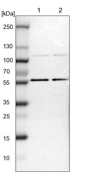 Western blot - Anti-TOX4 antibody (ab272576)