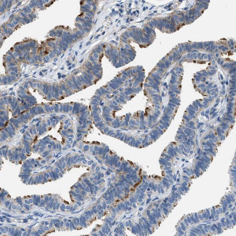 Immunohistochemistry (Formalin/PFA-fixed paraffin-embedded sections) - Anti-TMEM180 antibody (ab272578)