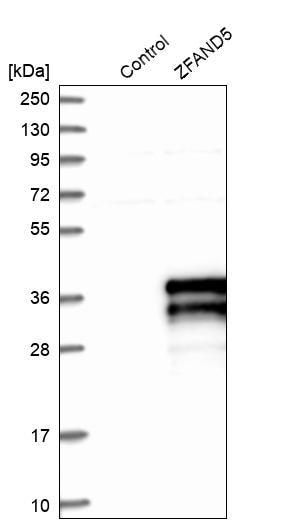 Western blot - Anti-ZFAND5 antibody (ab272580)