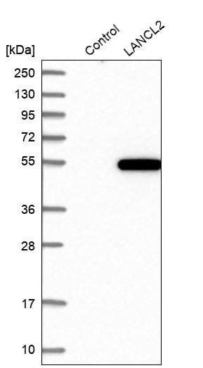 Western blot - Anti-LANCL2 antibody (ab272583)