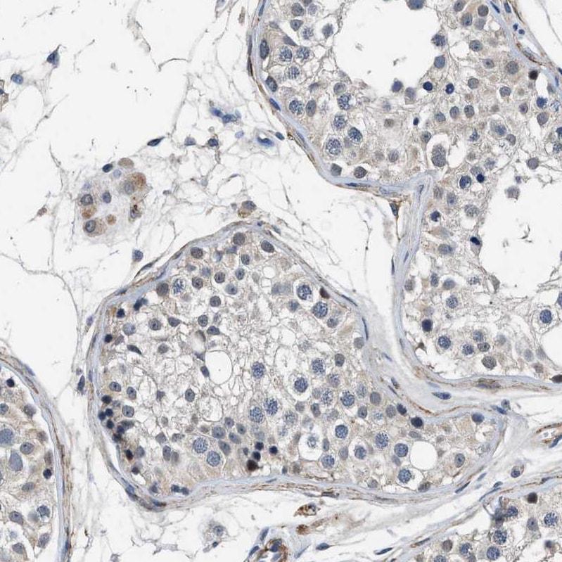Immunohistochemistry (Formalin/PFA-fixed paraffin-embedded sections) - Anti-LANCL2 antibody (ab272583)