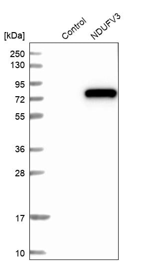 Western blot - Anti-NDUFV3 antibody (ab272584)