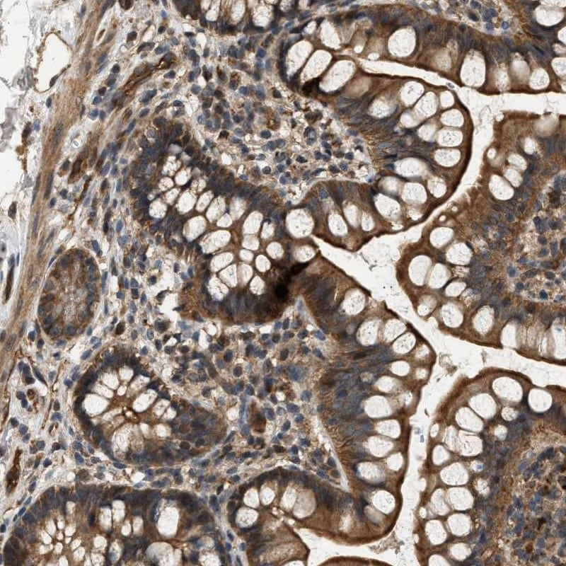 Immunohistochemistry (Formalin/PFA-fixed paraffin-embedded sections) - Anti-DUSP14 antibody (ab272587)