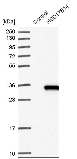 Western blot - Anti-HSD17B14 antibody (ab272589)