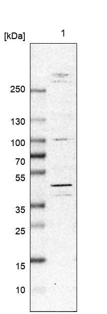 Western blot - Anti-MNK2 antibody (ab272591)