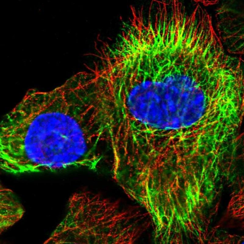 Immunocytochemistry/ Immunofluorescence - Anti-K24 antibody (ab272592)