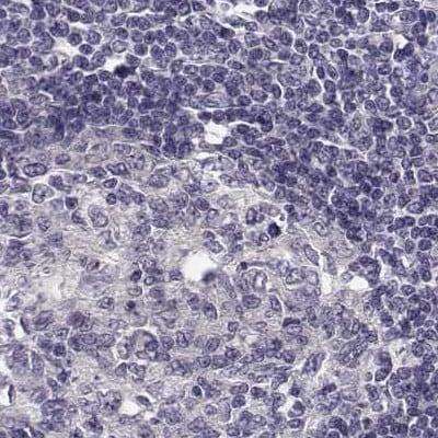 Immunohistochemistry (Formalin/PFA-fixed paraffin-embedded sections) - Anti-KIF13B antibody (ab272595)