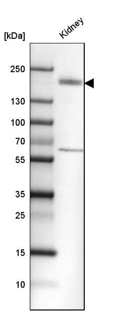 Western blot - Anti-KIF13B antibody (ab272595)