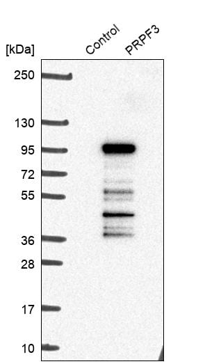 Western blot - Anti-PRPF3 antibody (ab272596)
