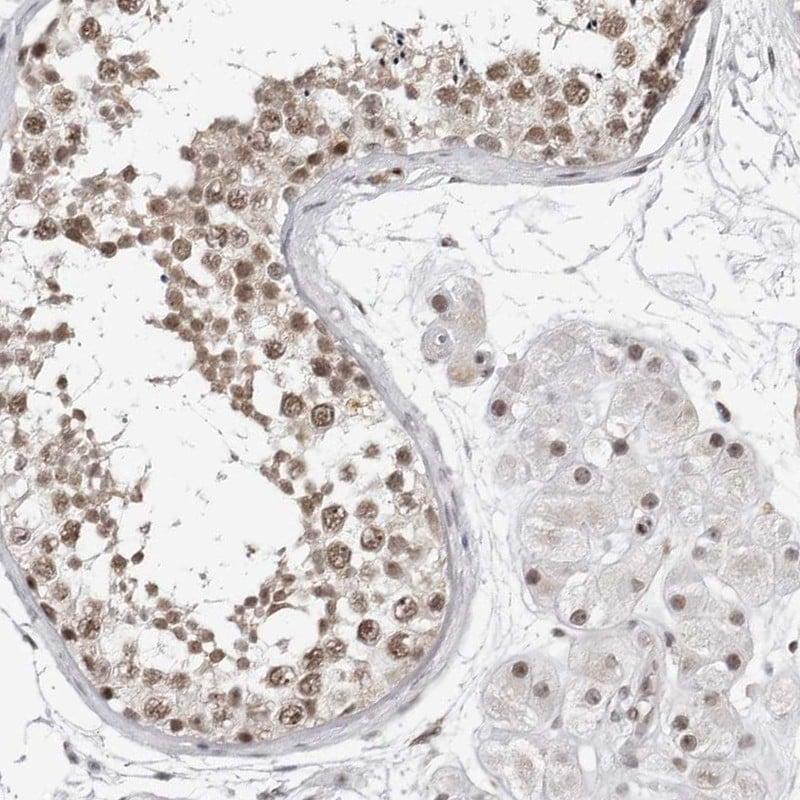 Immunohistochemistry (Formalin/PFA-fixed paraffin-embedded sections) - Anti-TRIM66 antibody (ab272597)