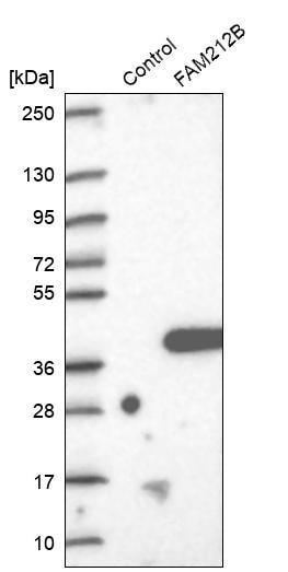 Western blot - Anti-C1orf183 antibody (ab272598)