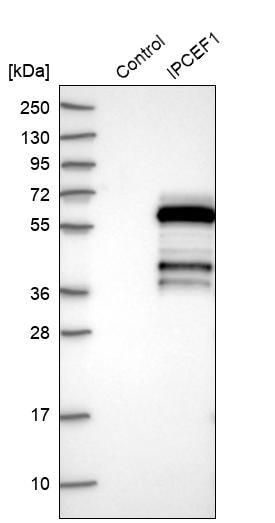 Western blot - Anti-IPCEF1 antibody (ab272599)