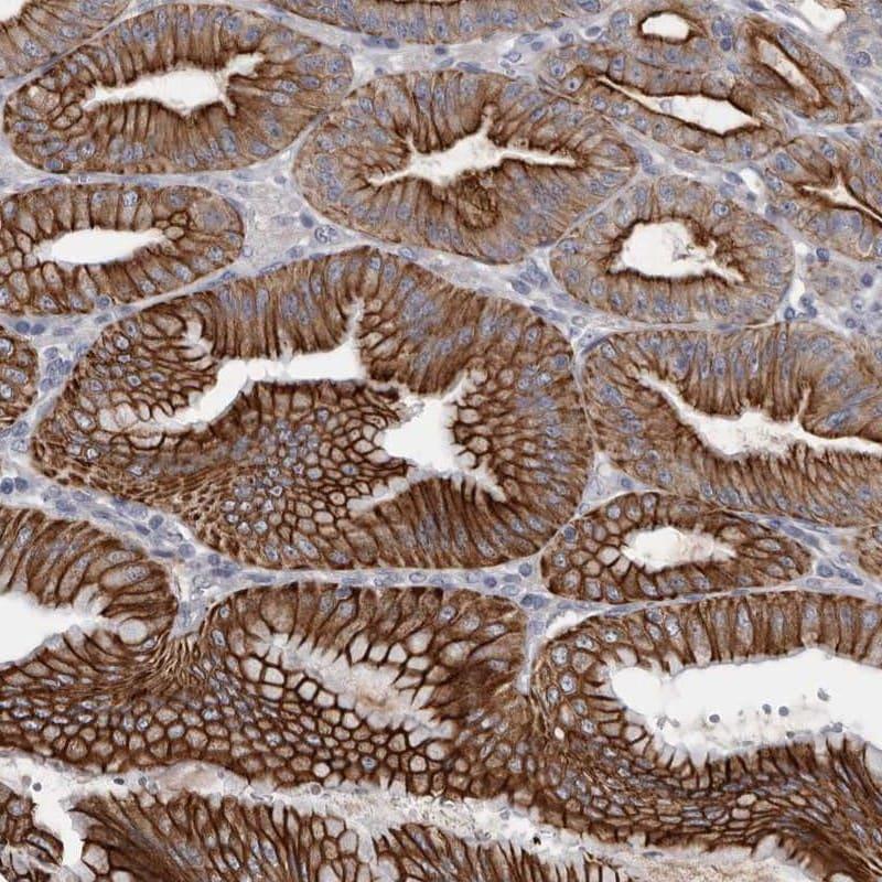 Immunohistochemistry (Formalin/PFA-fixed paraffin-embedded sections) - Anti-P2RY5 antibody (ab272600)