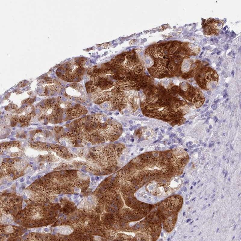 Immunohistochemistry (Formalin/PFA-fixed paraffin-embedded sections) - Anti-Nkx1-2 antibody (ab272602)