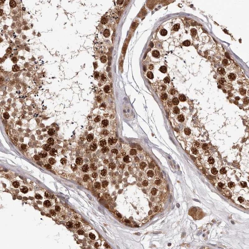 Immunohistochemistry (Formalin/PFA-fixed paraffin-embedded sections) - Anti-RACO-1 antibody (ab272604)
