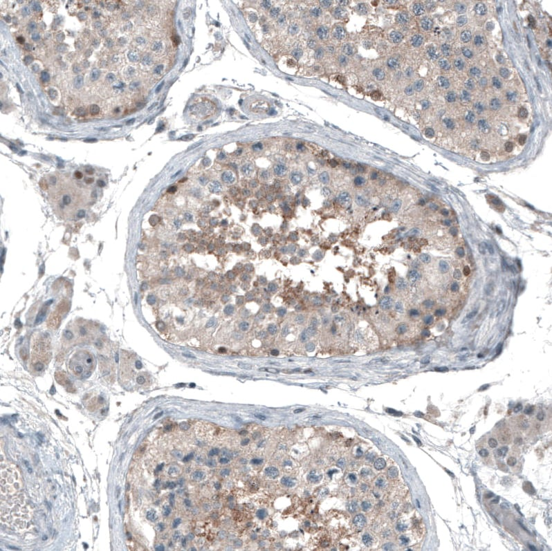 Immunohistochemistry (Formalin/PFA-fixed paraffin-embedded sections) - Anti-MRP8 antibody (ab272609)