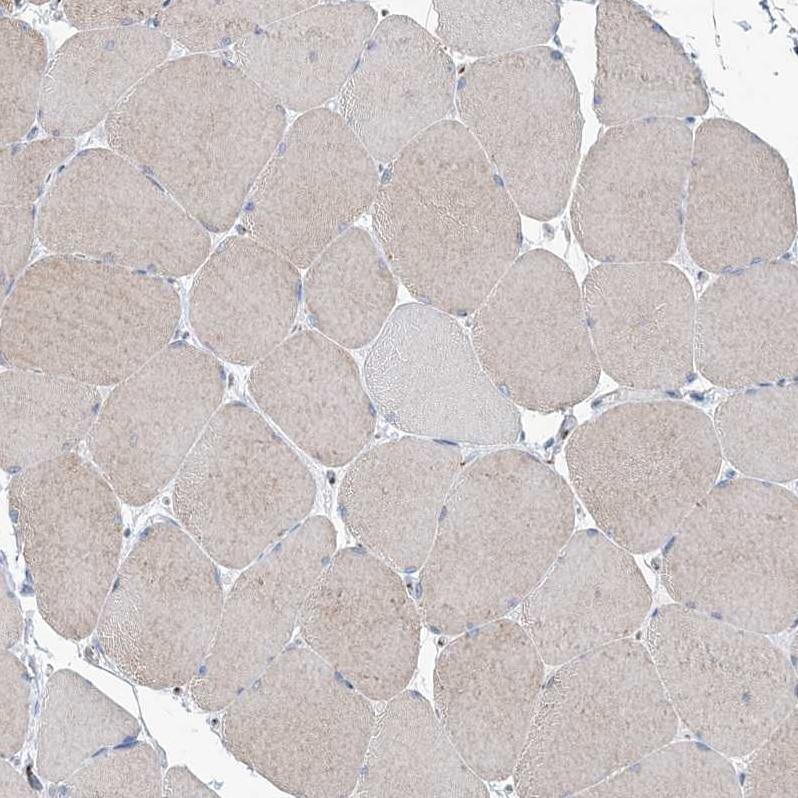 Immunohistochemistry (Formalin/PFA-fixed paraffin-embedded sections) - Anti-MAN1A2 antibody (ab272611)
