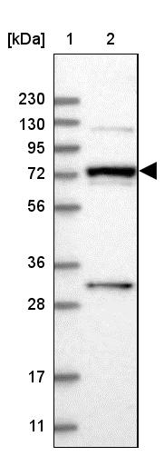 Western blot - Anti-MAN1A2 antibody (ab272611)