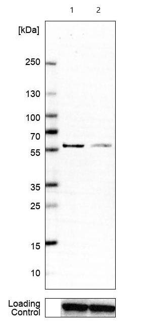 Western blot - Anti-RBMS3 antibody (ab272612)
