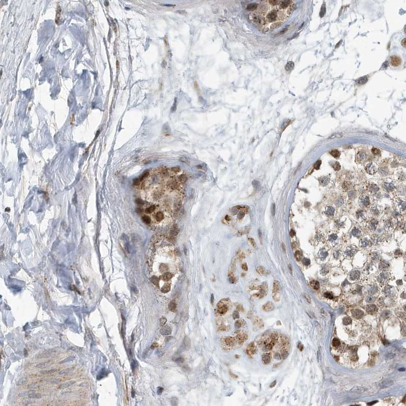 Immunohistochemistry (Formalin/PFA-fixed paraffin-embedded sections) - Anti-KIF15 antibody (ab272615)