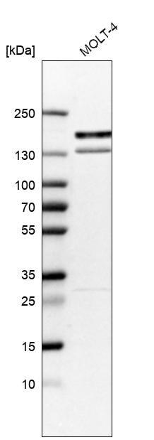 Western blot - Anti-KIF15 antibody (ab272615)