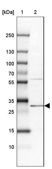 Western blot - Anti-PIGC antibody (ab272617)