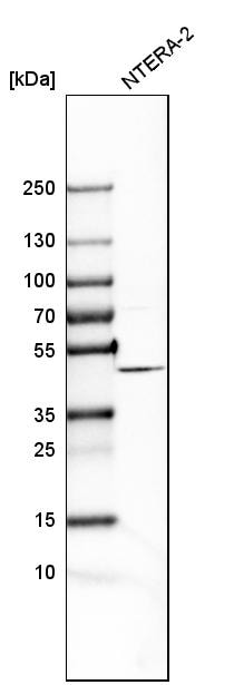 Western blot - Anti-FANCL antibody (ab272618)