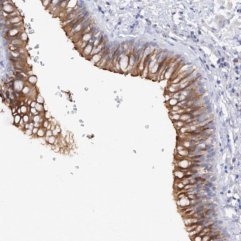 Immunohistochemistry (Formalin/PFA-fixed paraffin-embedded sections) - Anti-TAM41 antibody (ab272619)