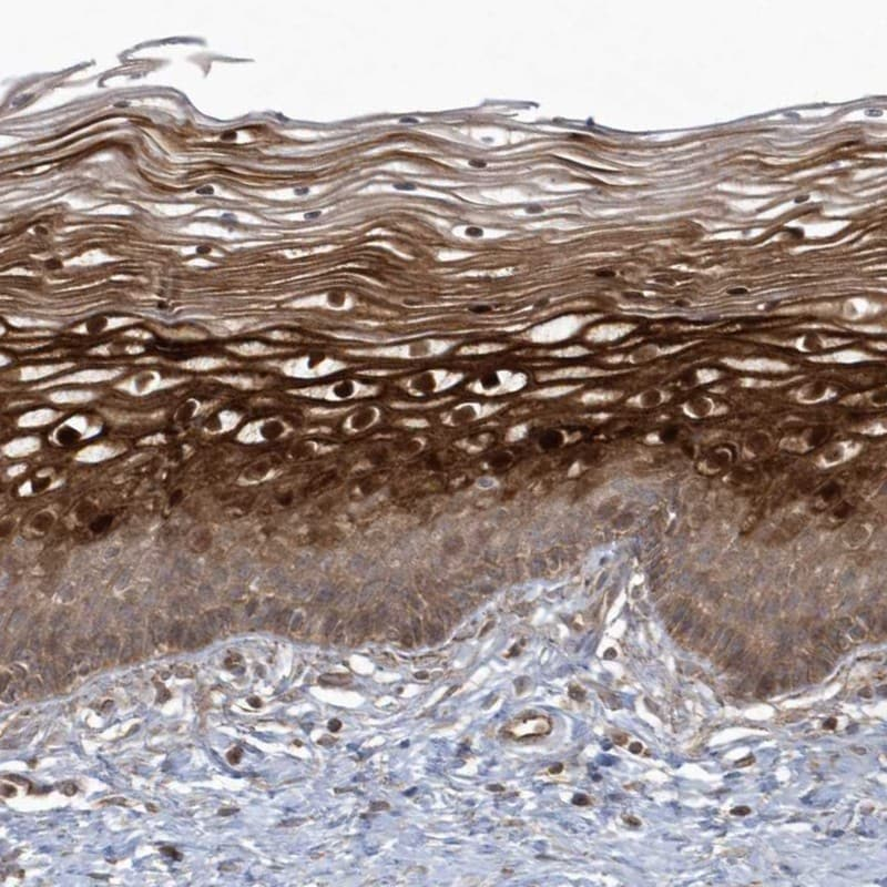 Immunohistochemistry (Formalin/PFA-fixed paraffin-embedded sections) - Anti-ARMC8 antibody (ab272621)