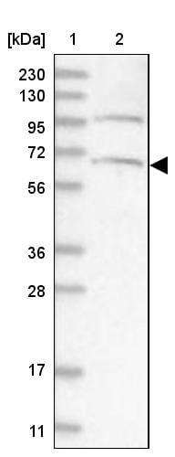 Western blot - Anti-ARMC8 antibody (ab272621)