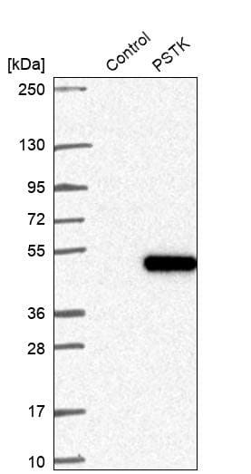 Western blot - Anti-PSTK antibody (ab272622)